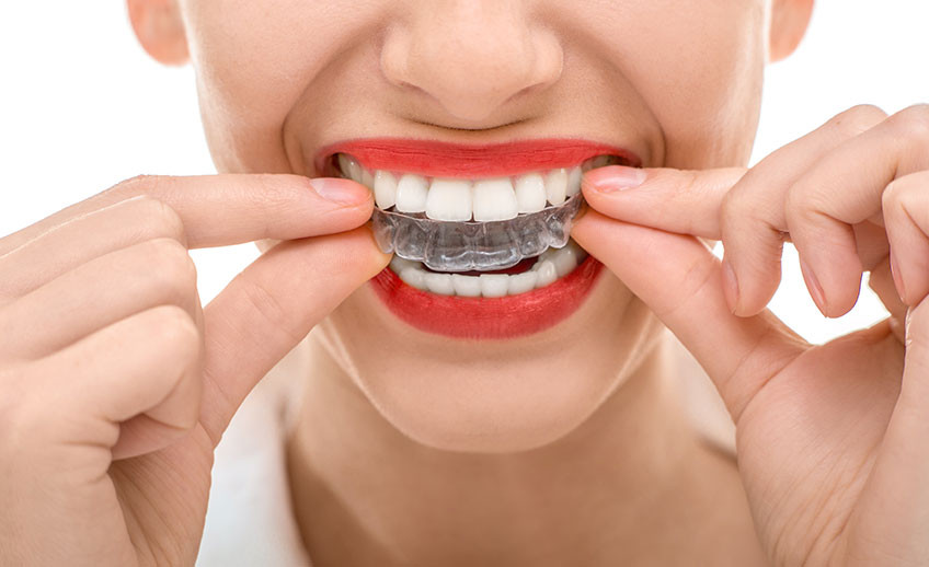 вирівнювання зубів елайнерами invisalign