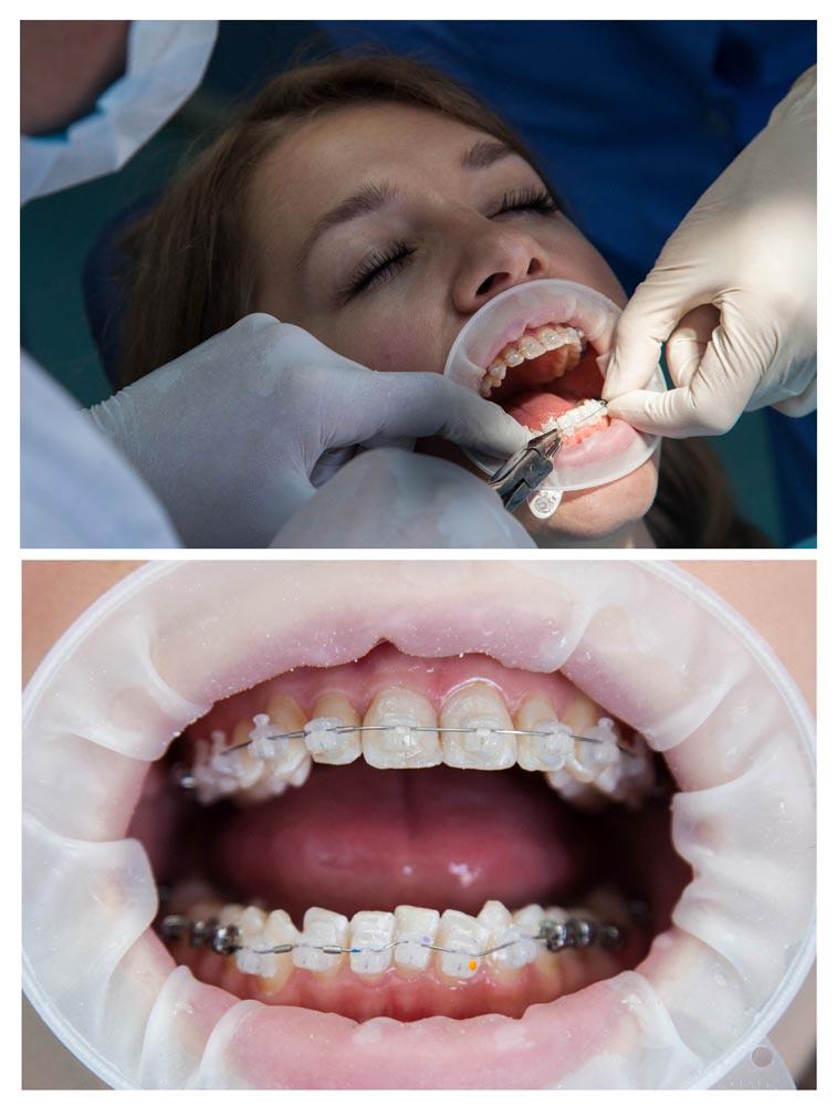 брекет-система на нижнюю челюсть