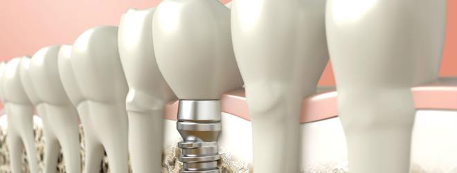 Имплантация зубов - путь восстановления красивой улыбки