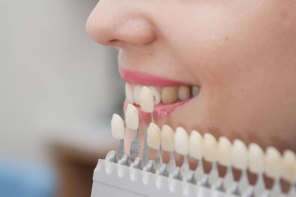 Как сделать зубы одного цвета