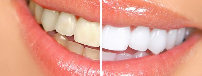 отбеливание зубов на сайте