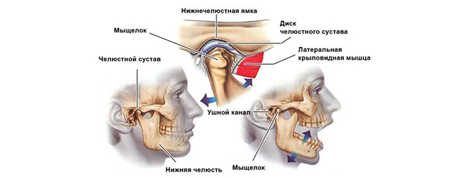 Осложнения после анестезии зуба воспаление нижнечелюстного сустава лечебная йога для суставов