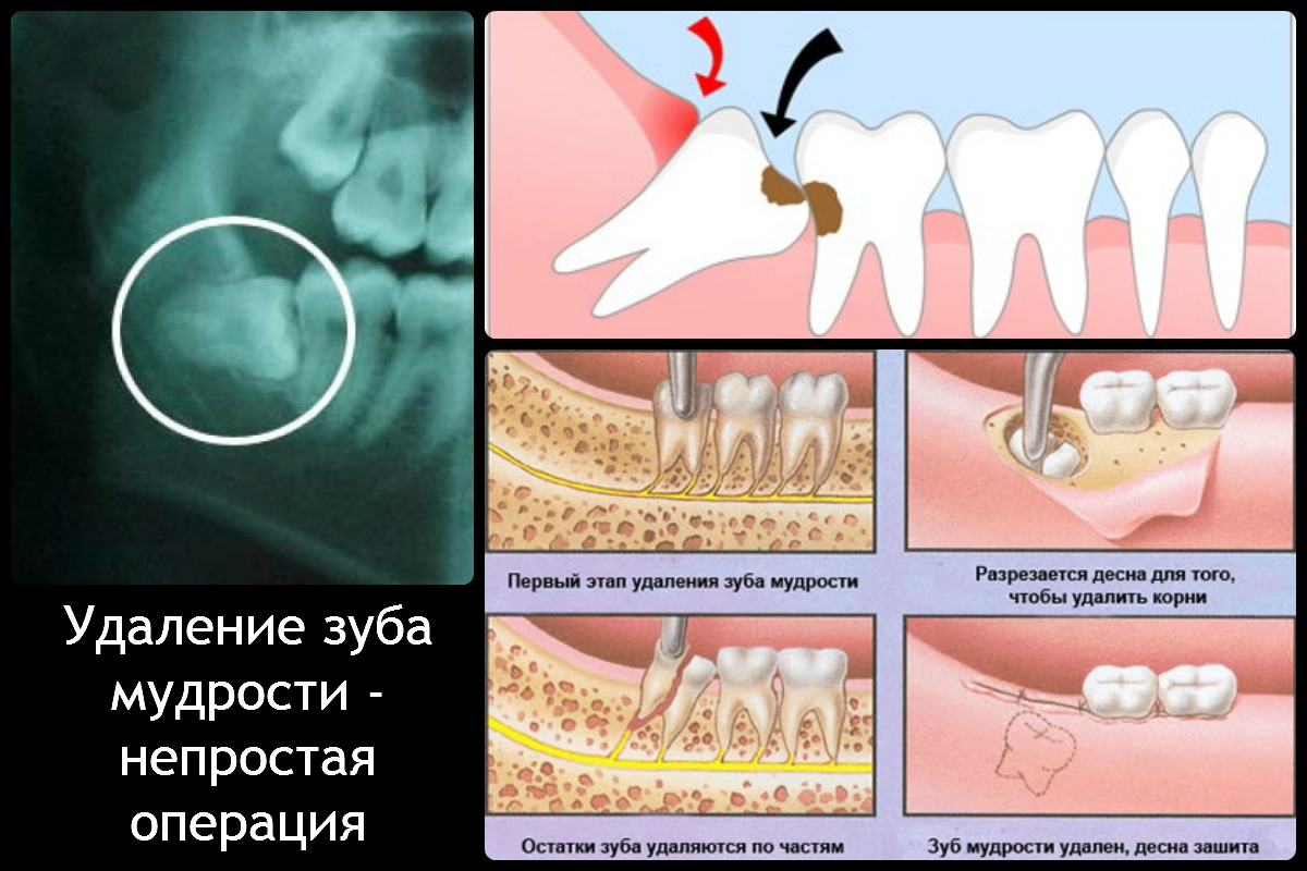 Почему болит зуб то сверху то снизу