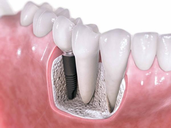 Безопасная имплантация зубов