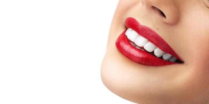 Как часто нужно повторять отбеливание зубов